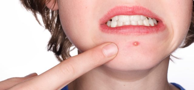 Top 5 Causes of Acne, and How to Best Protect Yourself from Them