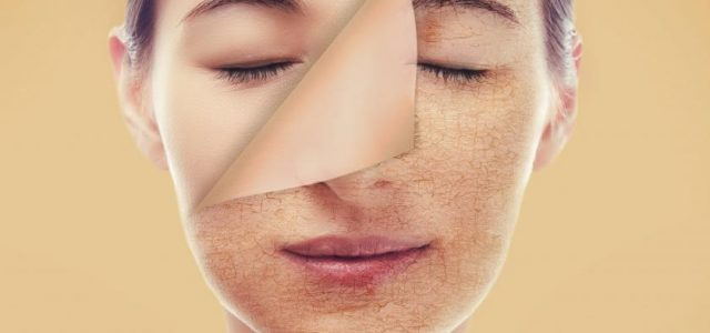 Could These Foods Be Ruining Your Complexion?