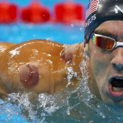 Cupping: Real Treatment or Real Silly?
