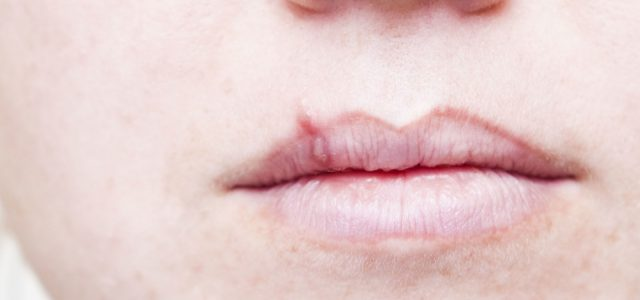 Here Are 6 Natural Ways To Show Your Cold Sores The Door