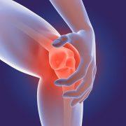 Todo Lo Que Necesitas Sobre La Artritis